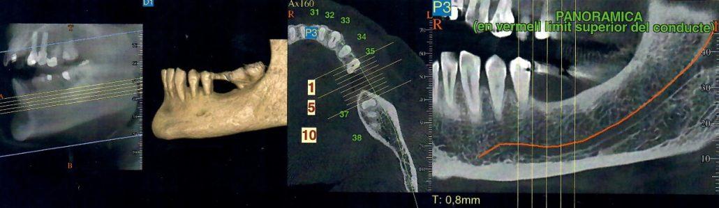 Dentalscan Orale Barcellona Dentista Dott Reato Barcellona Spagna Turismo Dentale